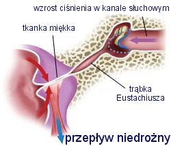 ucho wyrównanie ciśnienia - przepływ niedrożny